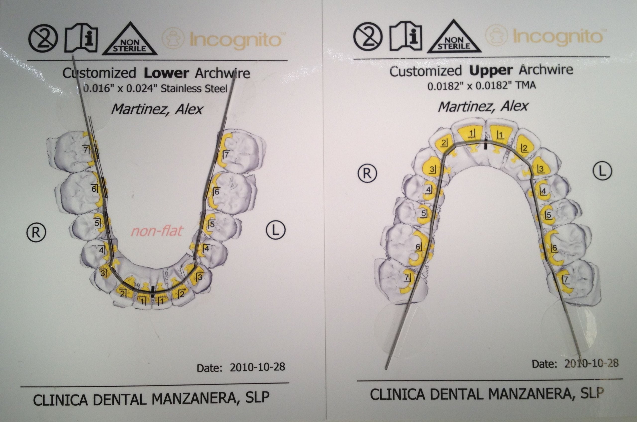 Arcos de ortodoncia lingual