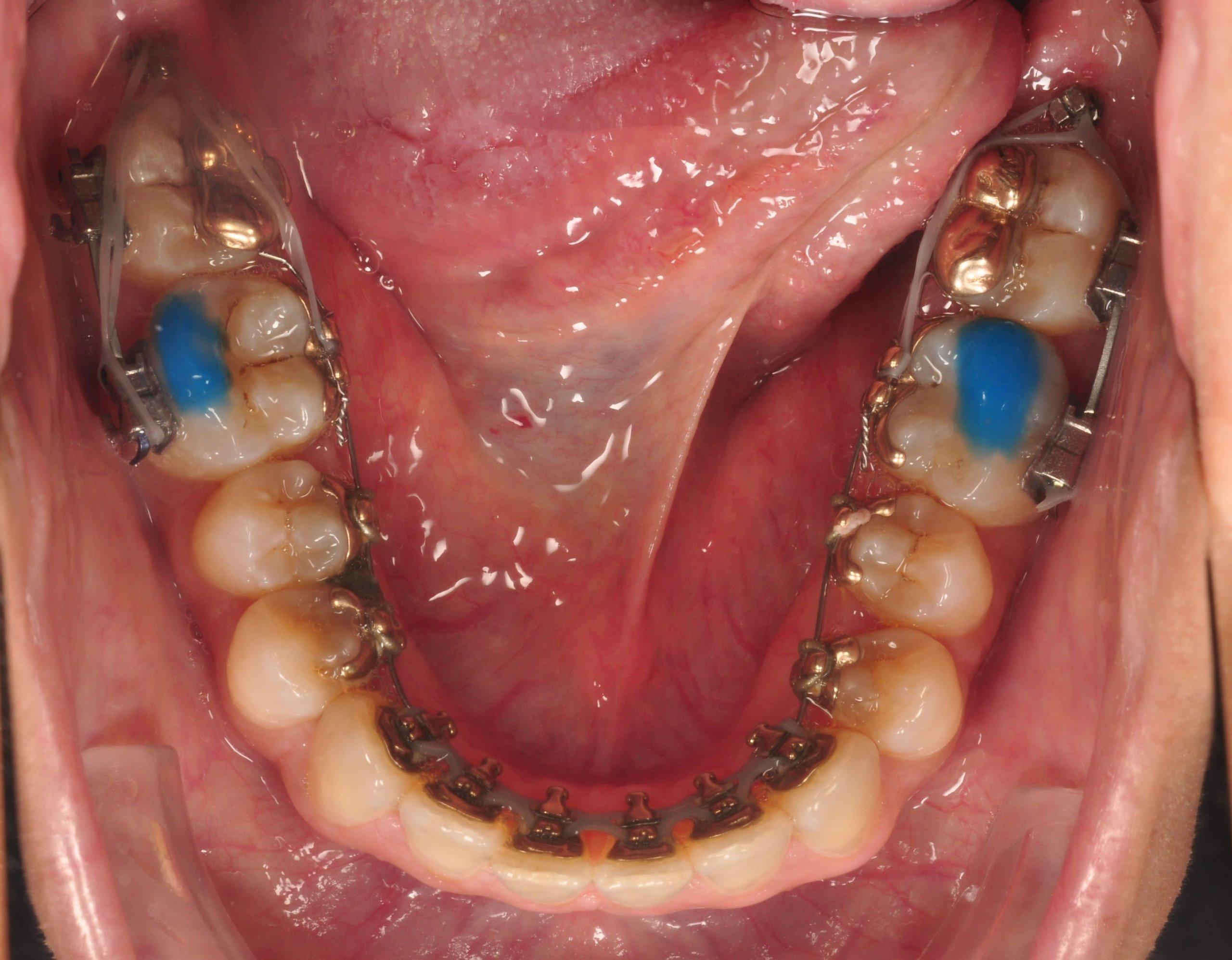 microtornillos ortodoncia