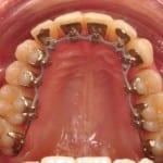 Ortodoncia lingual invisible Incognito en nuestra paciente.