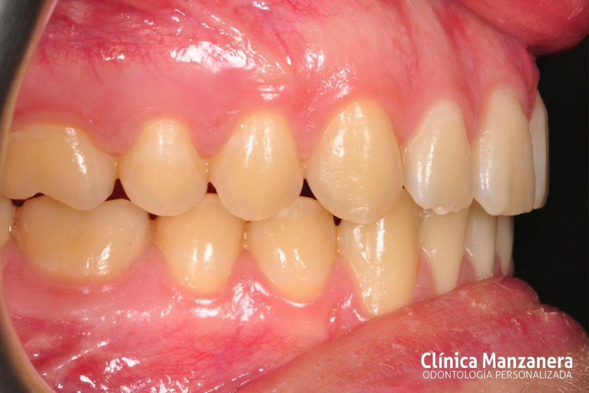 Clase III Ortodoncia resuelto con cirugia ortognatica y ortodoncia