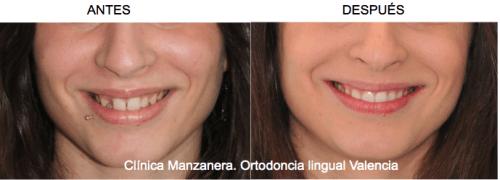 M. tenía una agenesia (ausencia) de incisivo lateral. La tratamos con ortodoncia lingual cerrando el espacio.