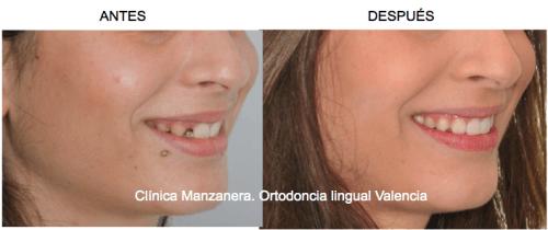Sonrisa lateral antes y después de la ortodoncia lingual con cierre de espacio para tratamiento de agenesia de incisivo lateral