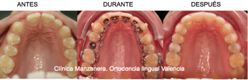Ortodoncia lingual en Valencia