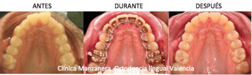 Ortodoncia lingual valencia