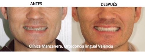 Sonrisa antes y después de la ortodoncia lingual tras un año y medio de tratamiento