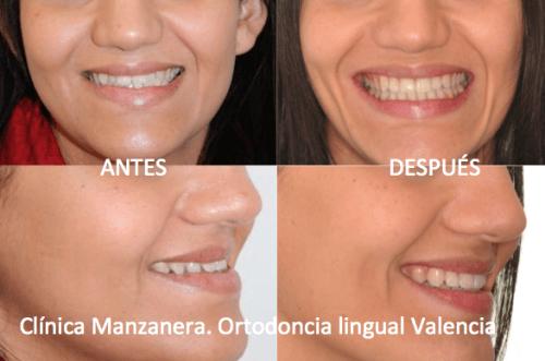 Sonrisa antes y después de la ortodoncia lingual