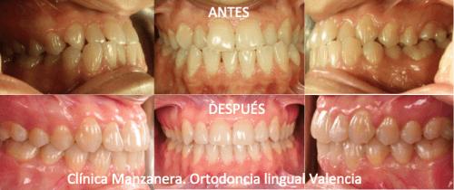 Resultado de frente y lateral antes y después de la ortodoncia lingual