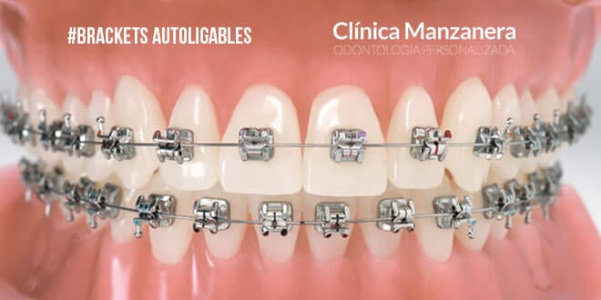 brackets autoligables o autoligantes