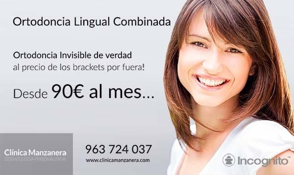 ortodoncia lingual combinada