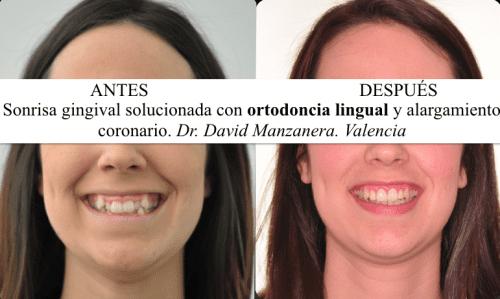 Sonrisa gingival solucionada con ortodoncia lingual y alargamiento de corona