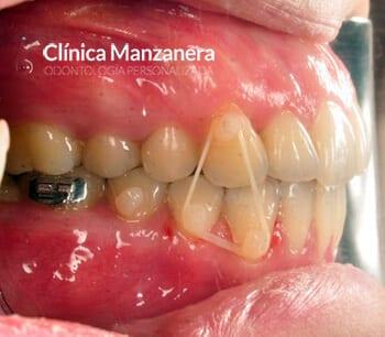 elastico ortodoncia