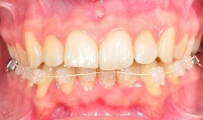 ortodoncia lingual superior, invisalign, ortodoncia por dentro valencia