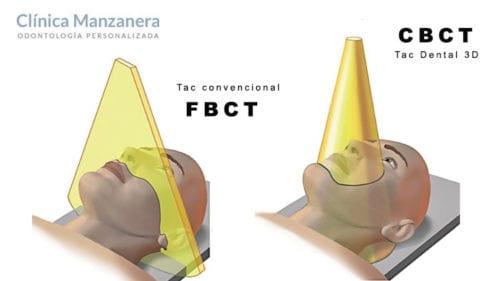 cbct tac dental 3d