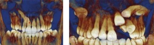 radiografia dental 3d