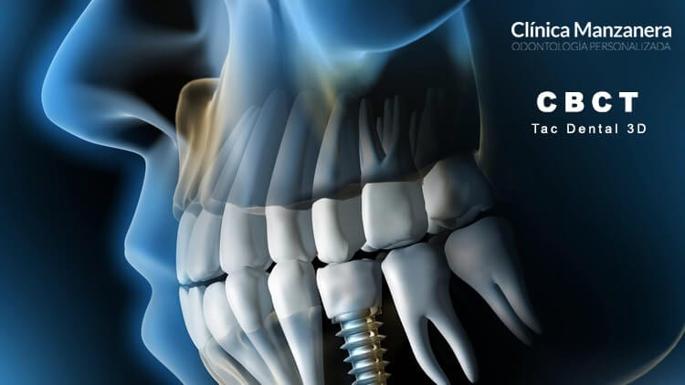 tac dental 3d