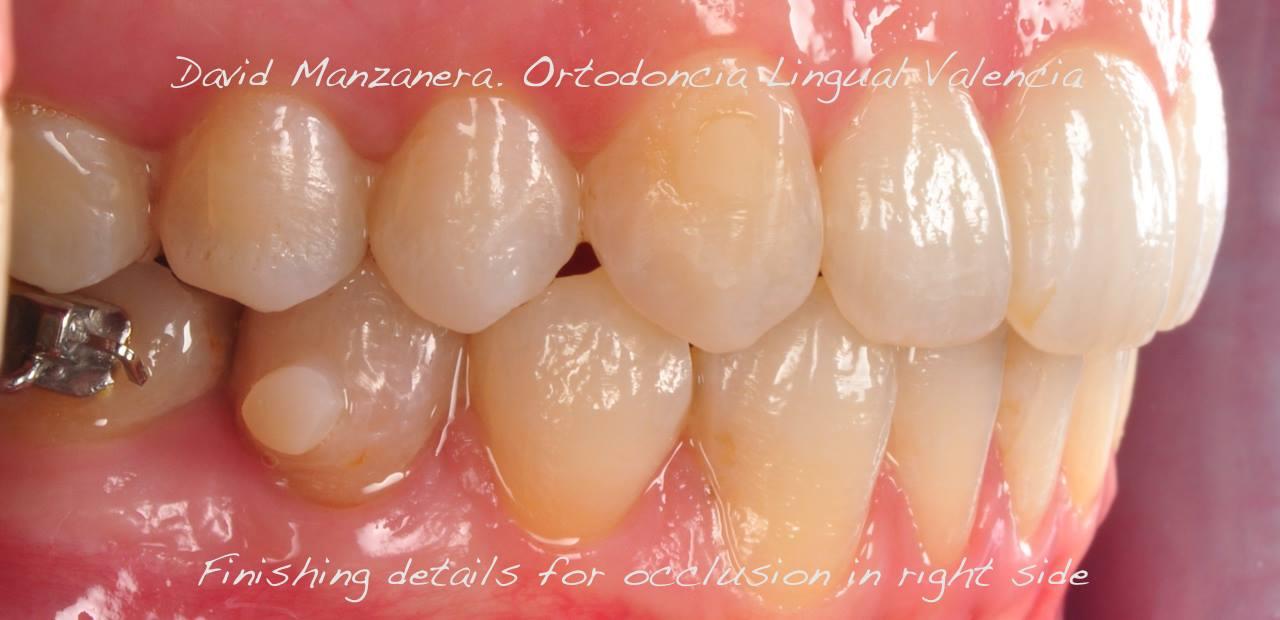 ortodoncia-lingual-microtornillos-1