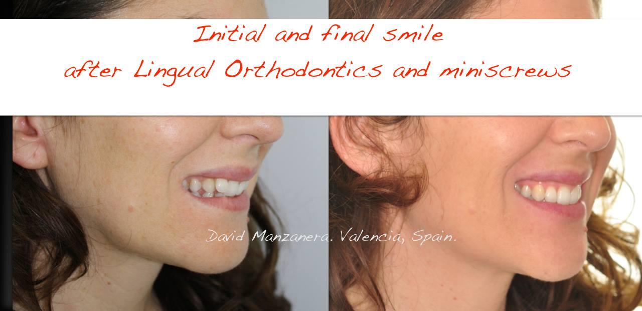 ortodoncia-lingual-microtornillos-10