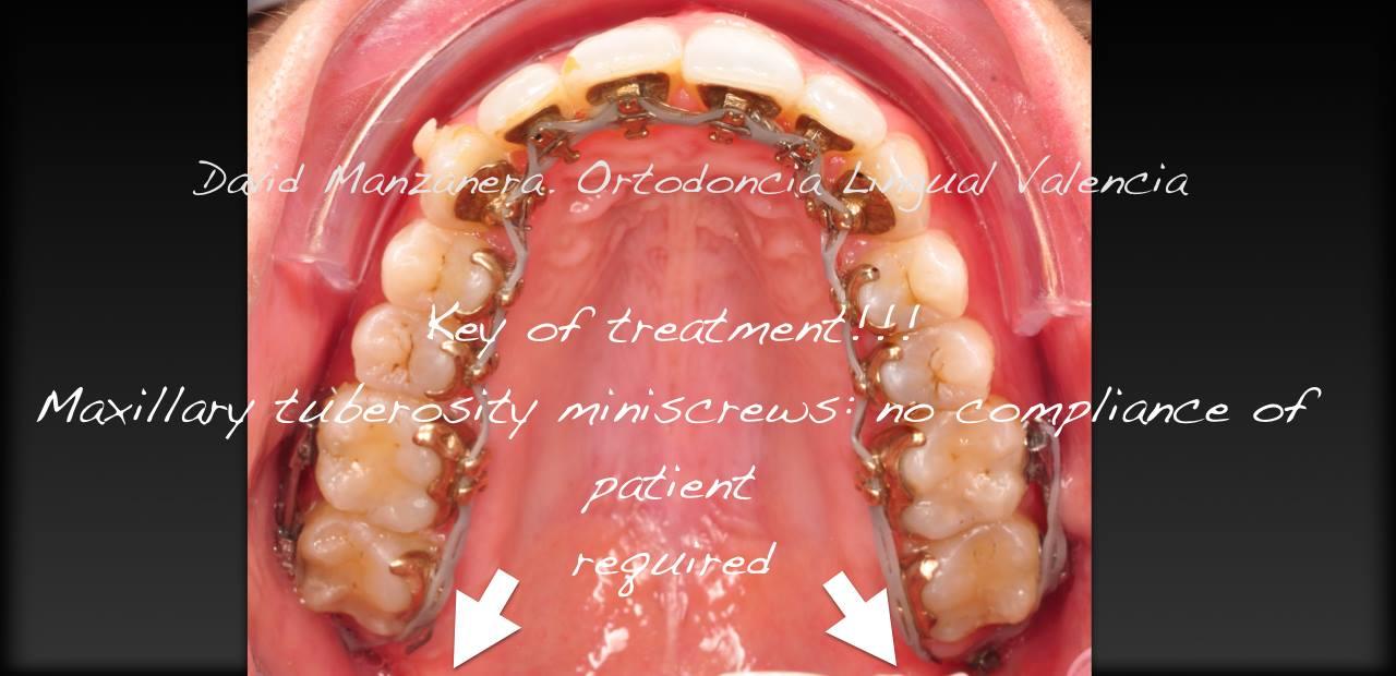 ortodoncia-lingual-microtornillos-2