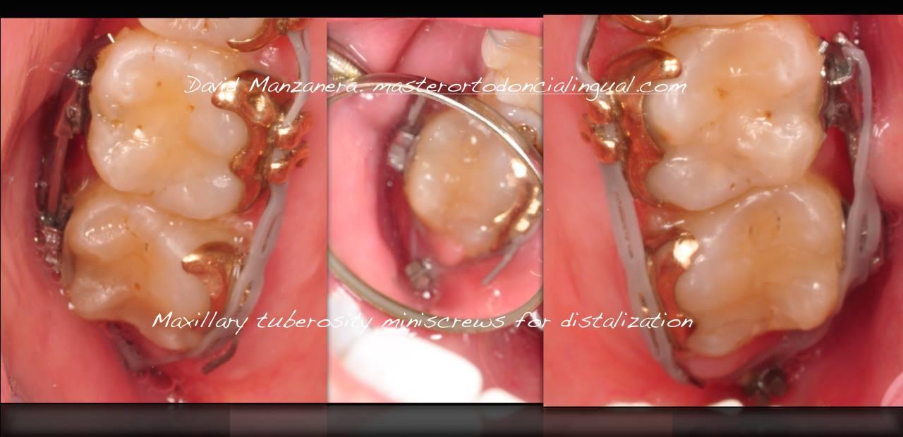 ortodoncia-lingual-microtornillos-3