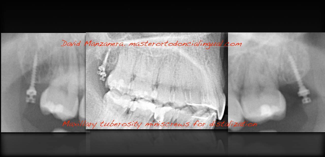 ortodoncia-lingual-microtornillos-4