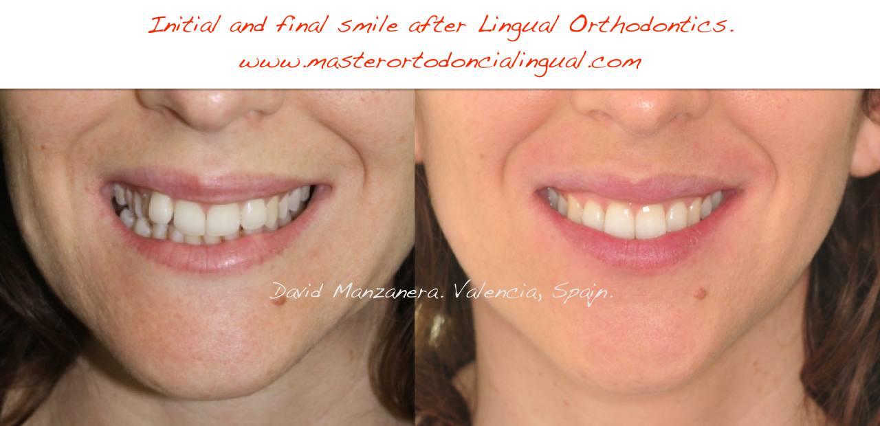 ortodoncia-lingual-microtornillos-5