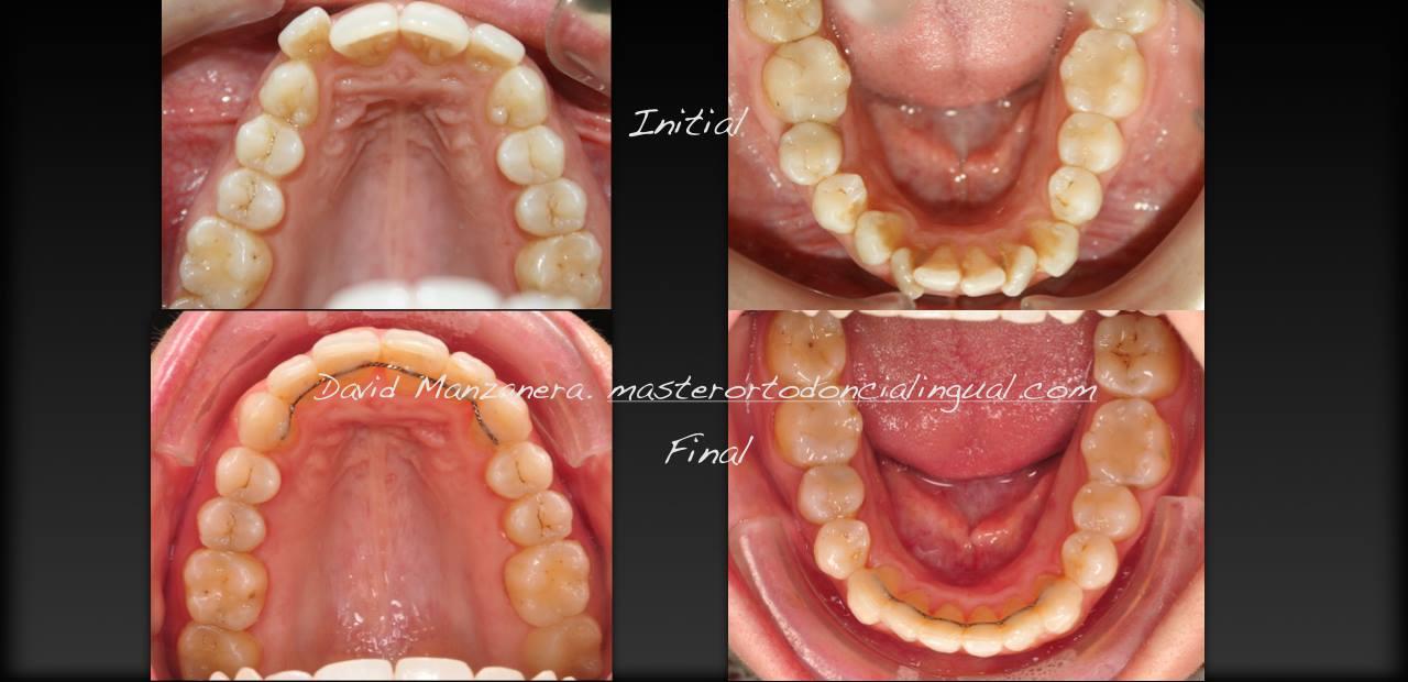 ortodoncia-lingual-microtornillos-7