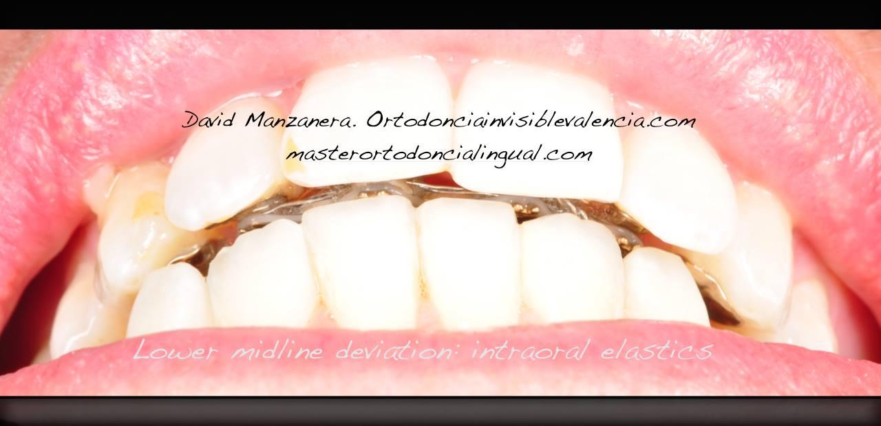 ortodoncia-lingual-microtornillos-8