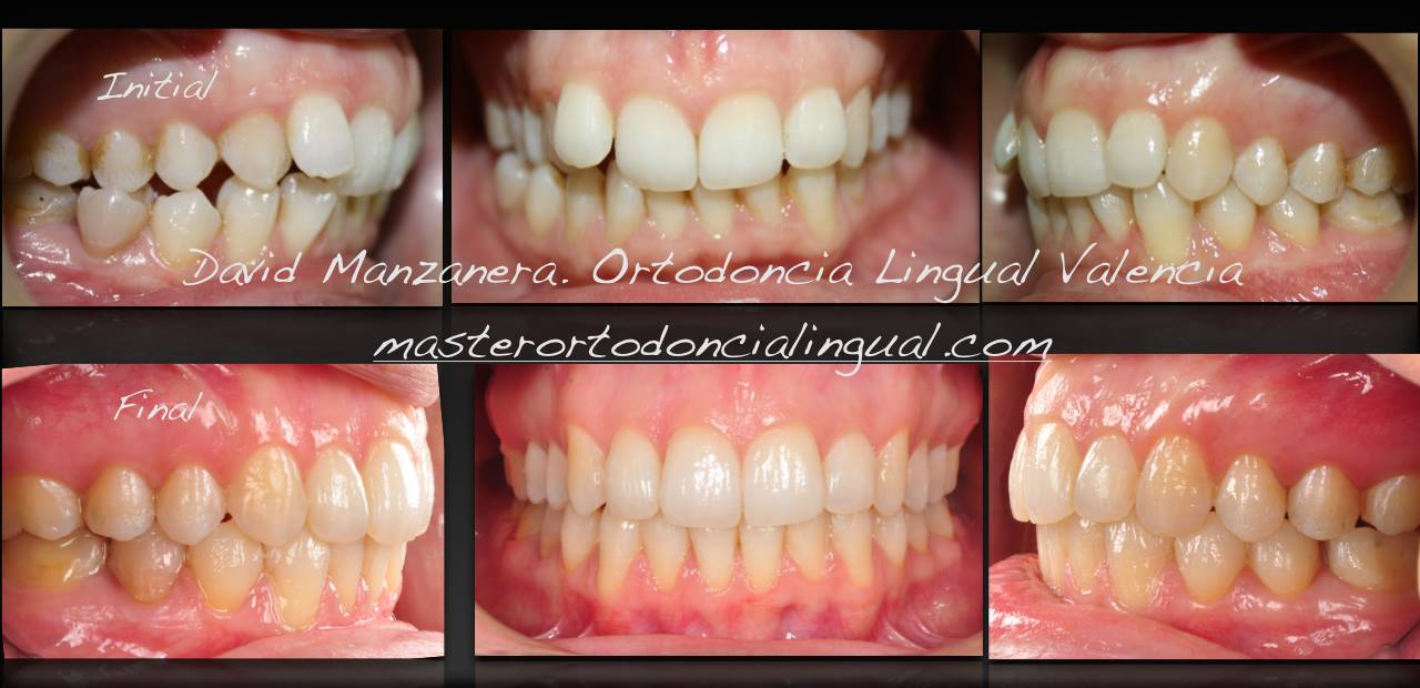 ortodoncia-lingual-microtornillos-9