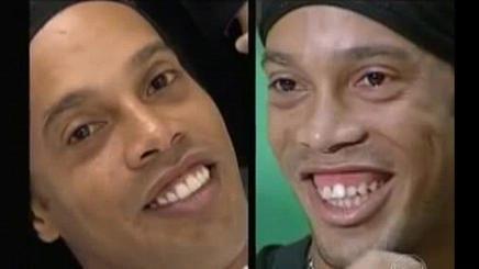 Ronaldinho sonrisa gingival