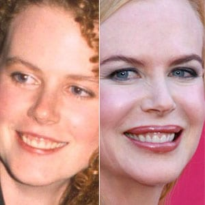 sonrisa gingival Nicole Kidman