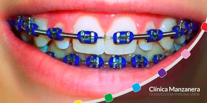 brackets de color azul