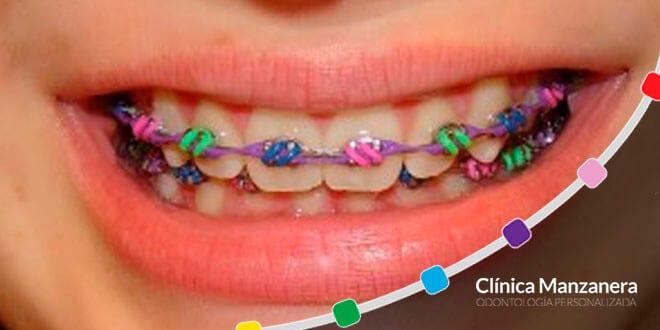 brackets de colores niños