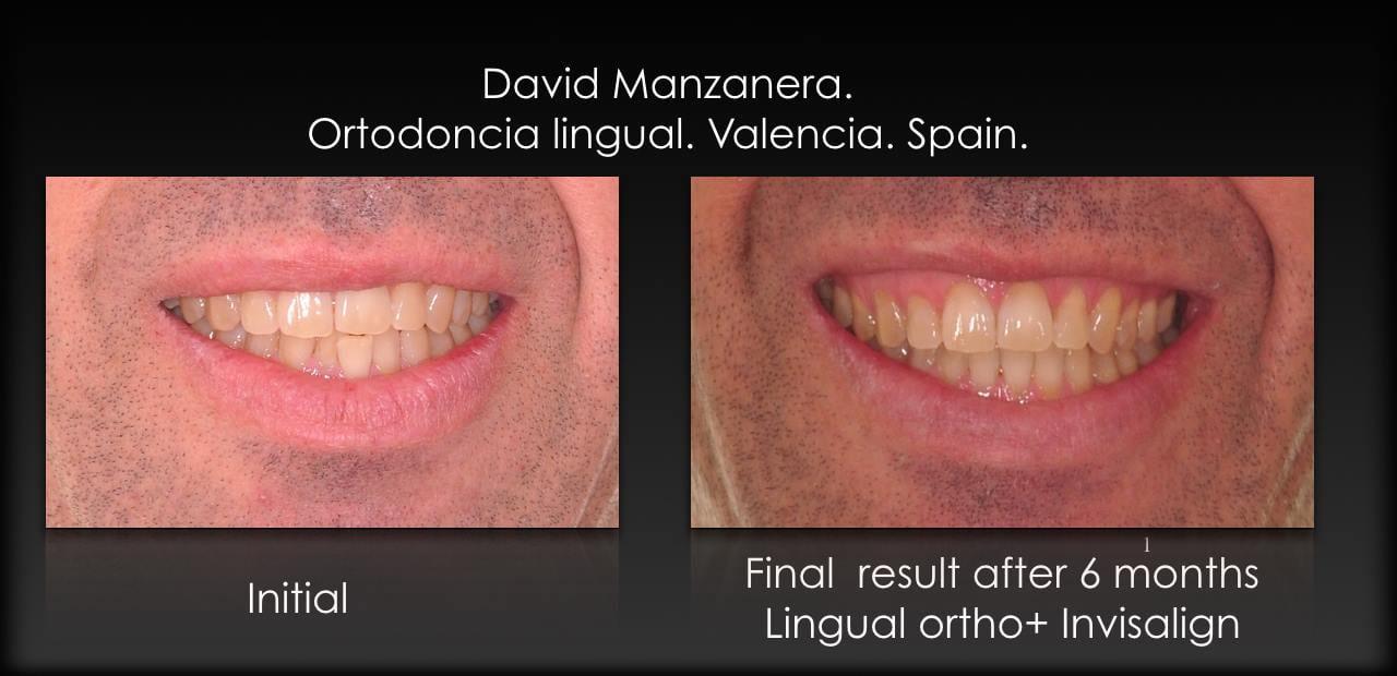 combinación de ortodoncia lingual invisible abajo, y alineadores transparentes Invisalign arriba
