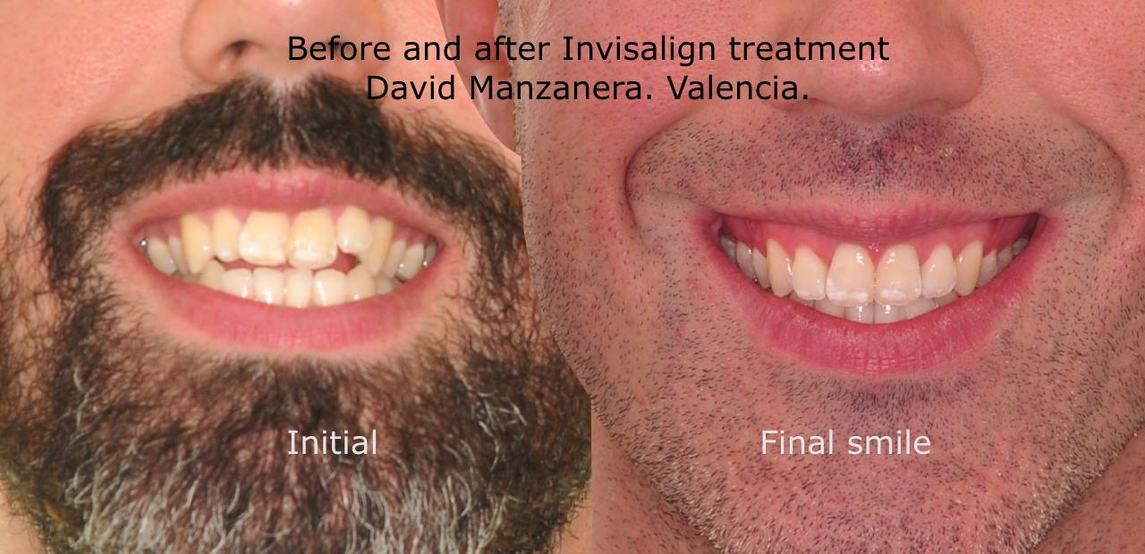 Before and after invisalign treatment