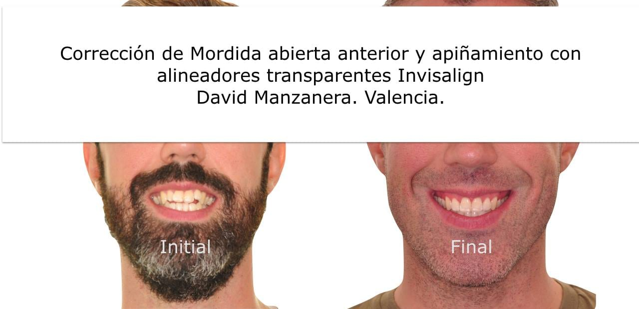 Correción de Mordida abierta anterior y apiñamiento con alineadores transparentes Invisalign