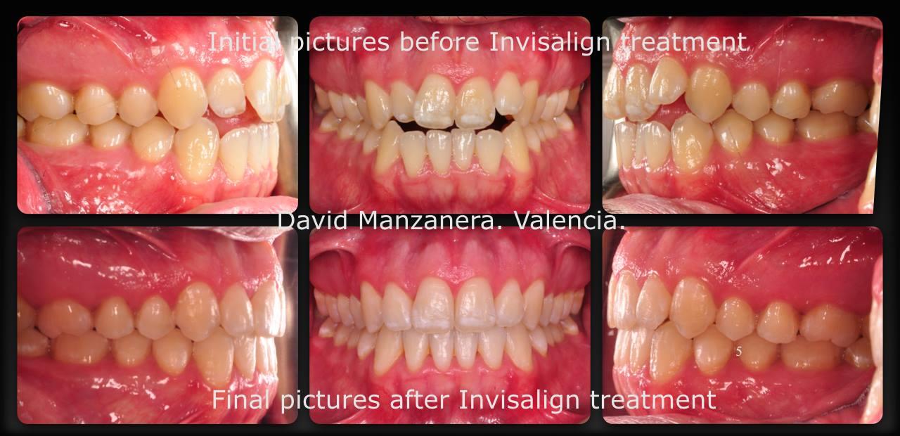 fotos antes y después invisalign