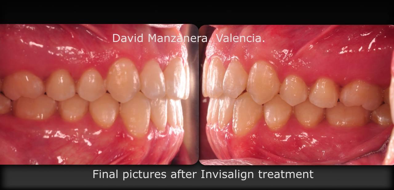 vista lateral antes y despues ortodoncia invisalign