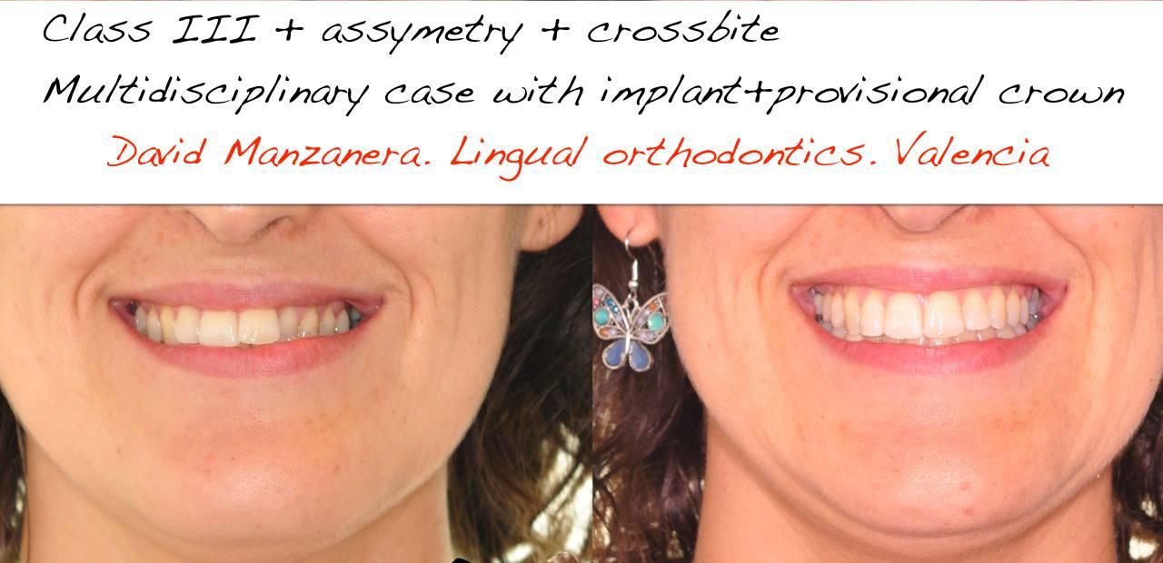 Caso resuelto asimetria con ortodoncia lingual