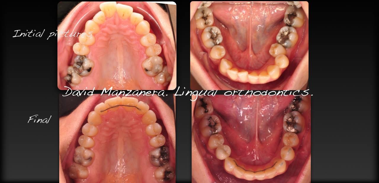antes-y-despues-mordida cruzada-asimetria-desviacion-mandibular-con-ortodoncia-lingual