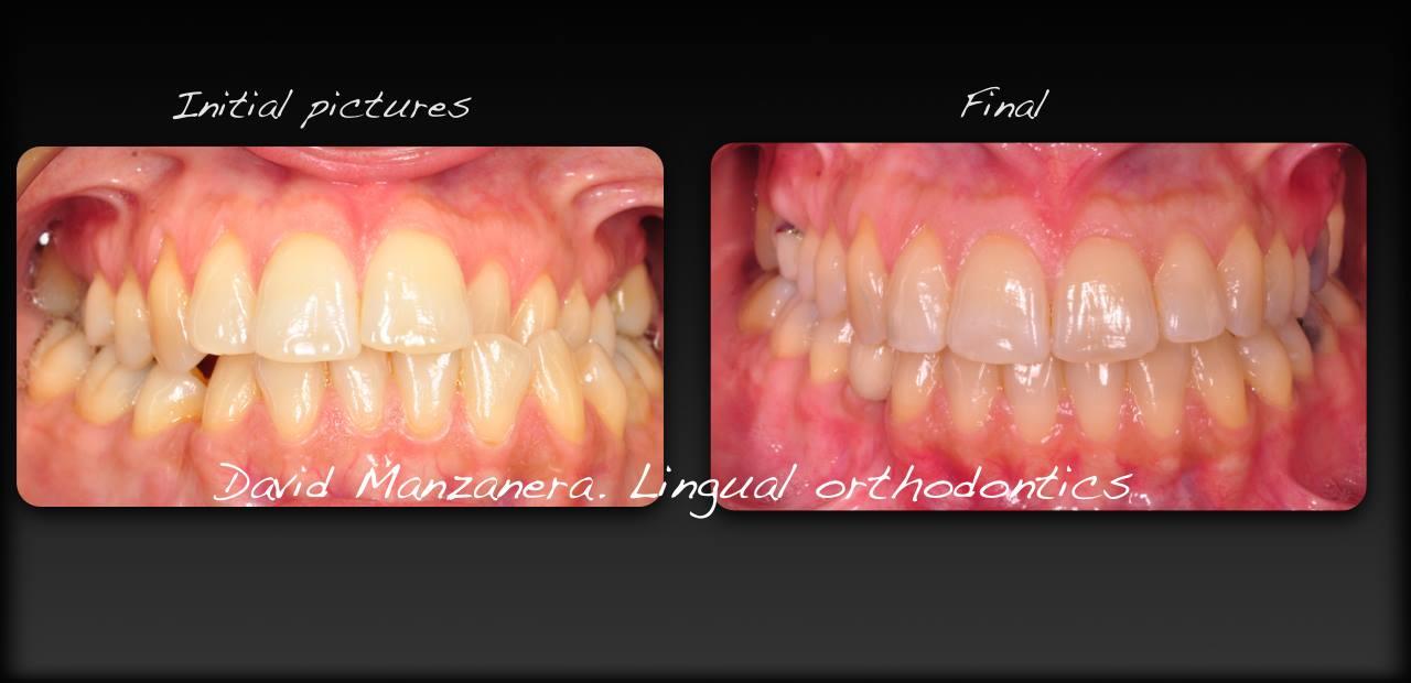 Antes y despuésmordida cruzada, asimetría y desviación mandibular tratada con ortodoncia lingual