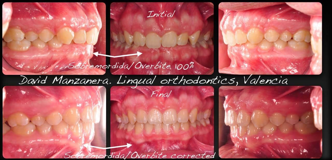 antes y despues tratamiento ortodoncia lingual
