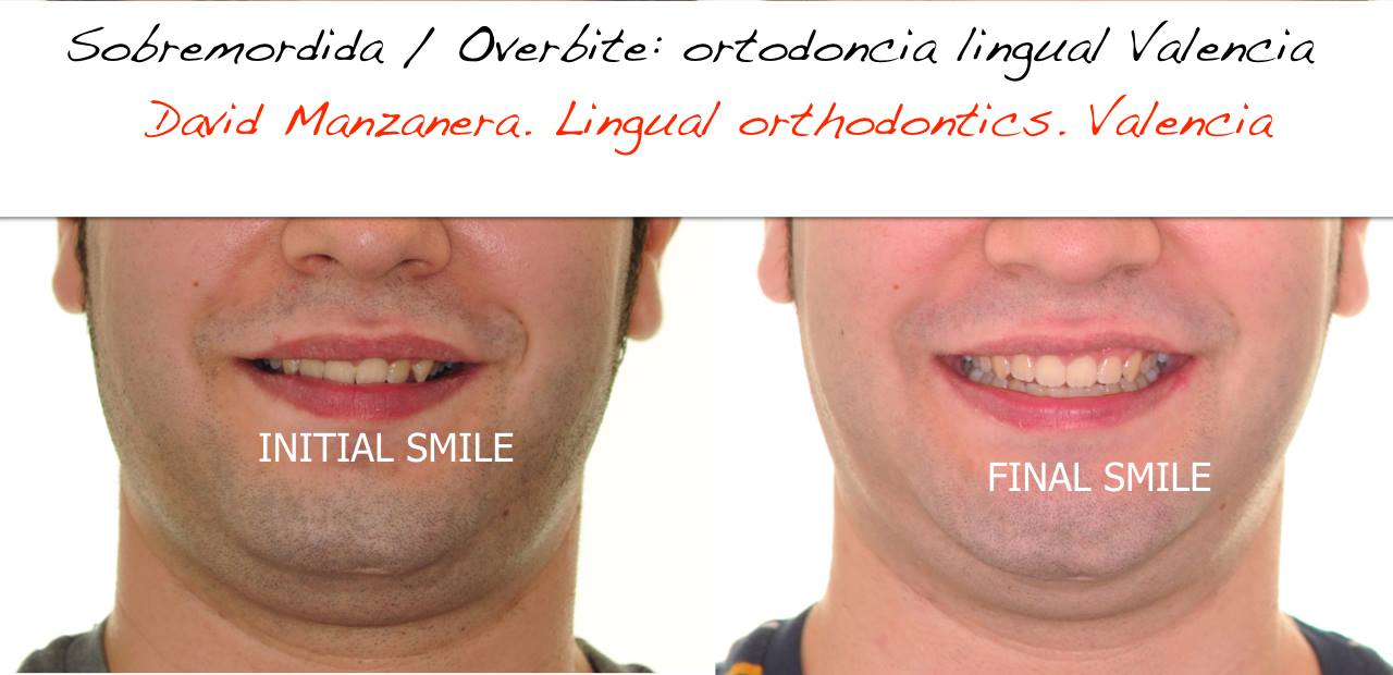 casos resueltos ortodoncia lingual