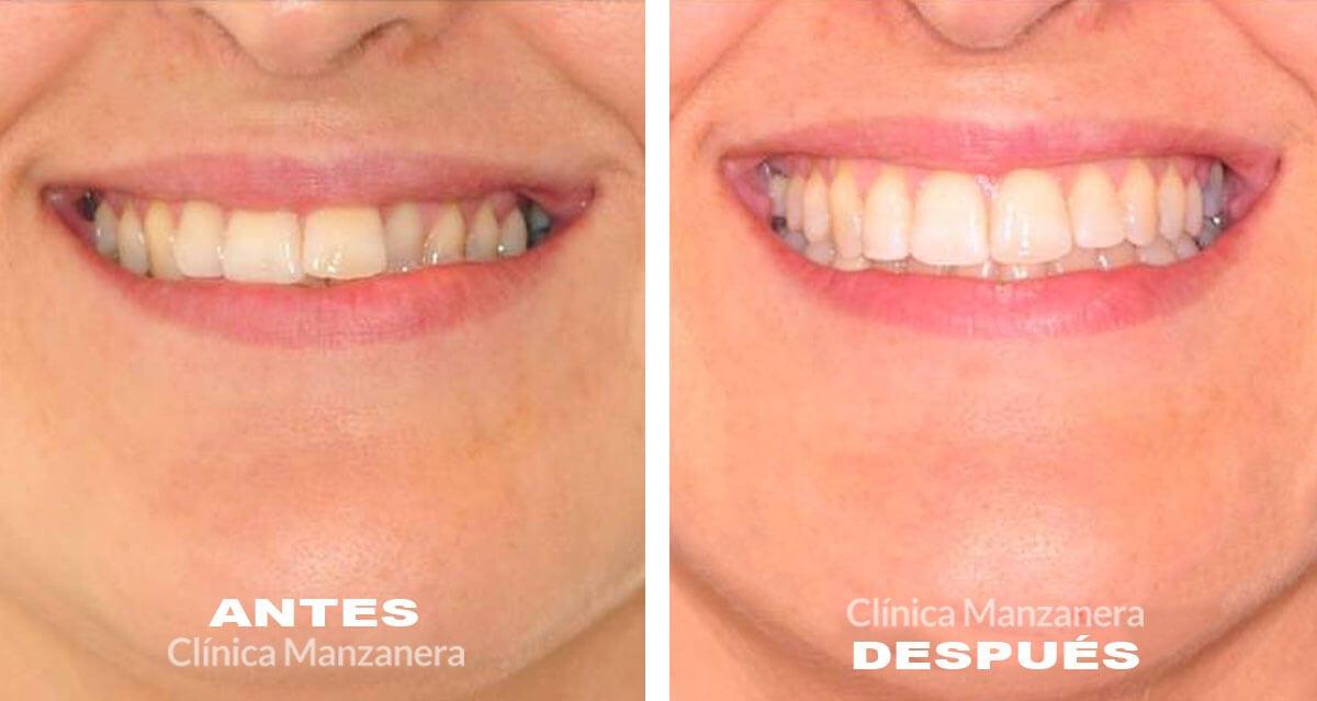 asimetría y desviación mandibular tratada con ortodoncia lingual