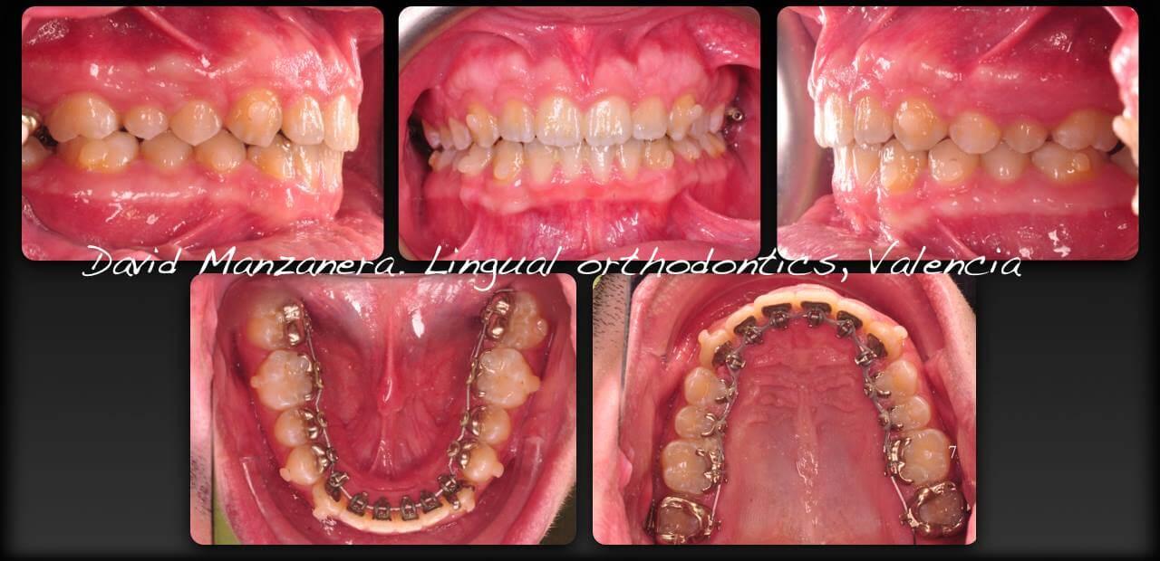 caso clinico sobremordida con ortodoncia lingual