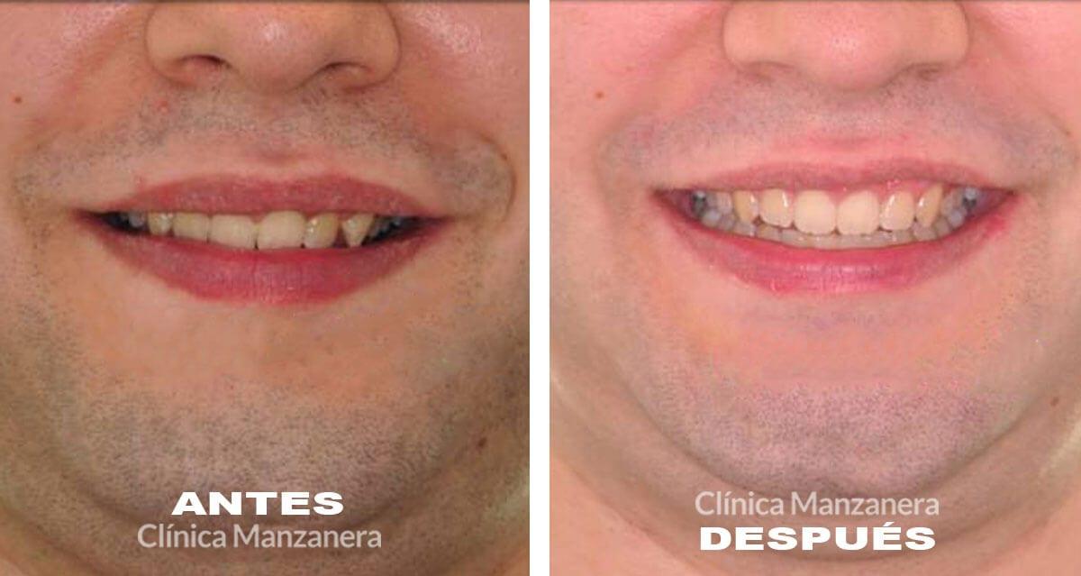 sobremordida profunda resuelta con ortodoncia lingual