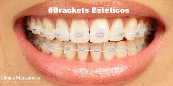 brackets esteticos