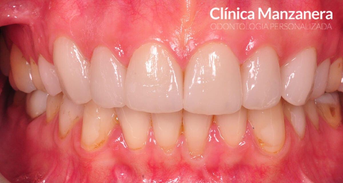 oclusión final con carillas dentales superiores