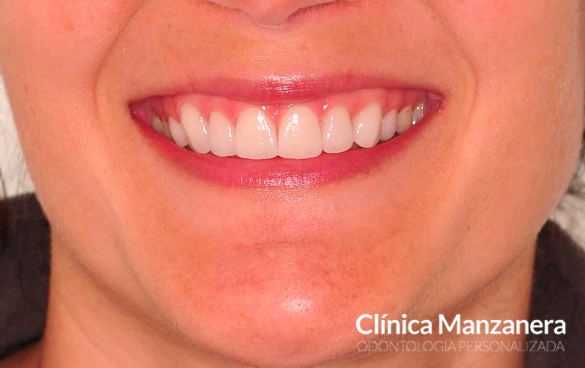 sonrisa final con carillas superiores y blanqueamiento dental