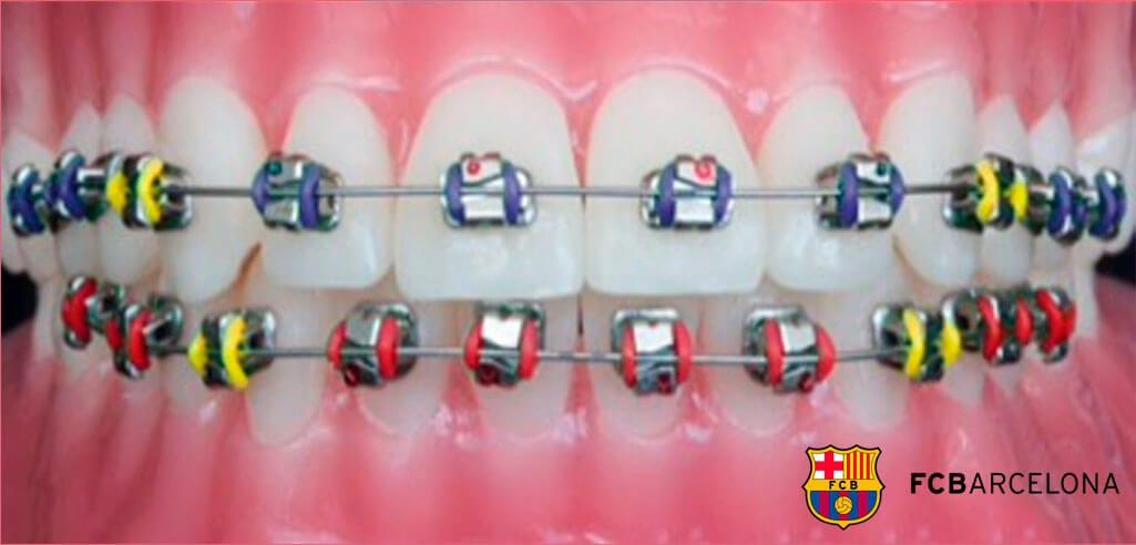 brackets con los colores del futbol club barcelona
