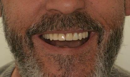 resultado implantes inmediatos
